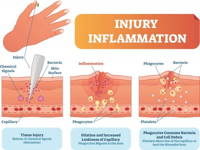 Diagram of factors involved in Injury and Inflammation